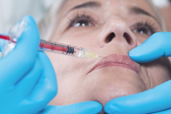 trattamento filler labbra